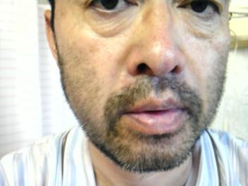 1週間で伸びる髭